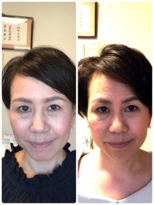 施術前後の顔